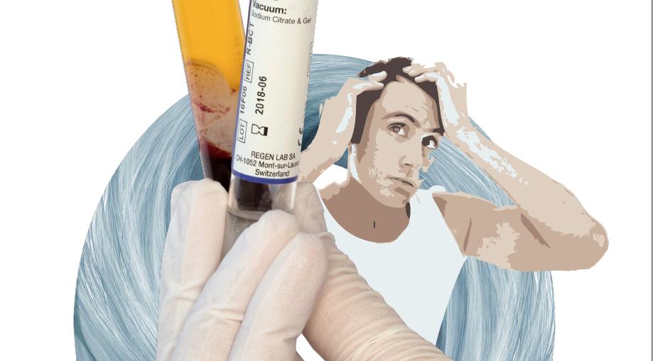 PRP (Platelet-Rich Plasma) терапия